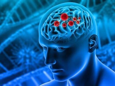 Fototapeta 3d, render, illustration, brain, dementia, mental health, tumor, tumour, cancer, growth, mental illness, healthy, biology, man, medical, pose, medicine, body, depression, science, anatomy, anatomical,