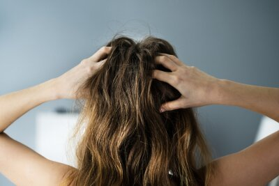 Fototapeta Itching Dry Head Scalp