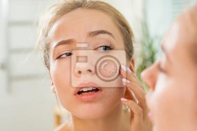 Fototapeta Mladá krásná žena se dotýká pokožky v koupelně. Nešťastná dívka stojící v ručníku, pohlédla do zrcadla a zkontrolovala suchou podrážděnou pokožku. Ranní péče o pleť.