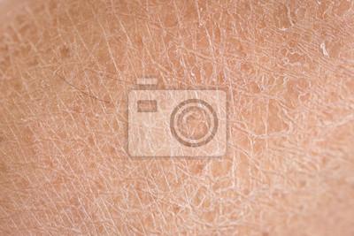 Fototapeta suchá kůže (ichthyosis) detail