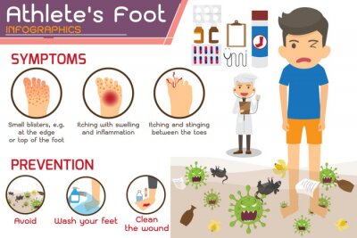 Obraz Athlete's foot or Hong kong foot Disease Infographics. wounds on foot. symptoms and prevention Athlete's foot. health and medicine cartoon vector illustration.