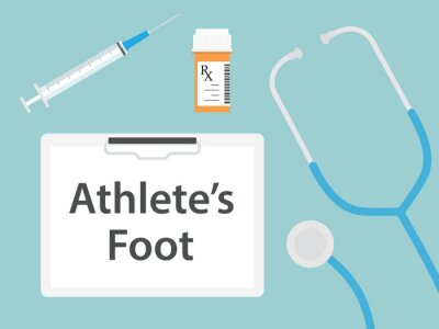 Obraz Athlete's Foot written in patient card, medical concept- vector illustration
