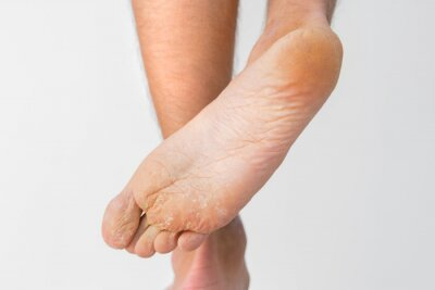 Obraz Close up of dry feet. Peeling and cracked foot. Fungal infection or athlete's foot, dry skin, dermatitis, eczema, psoriasis, sweaty feet or dehydration. Health care concept