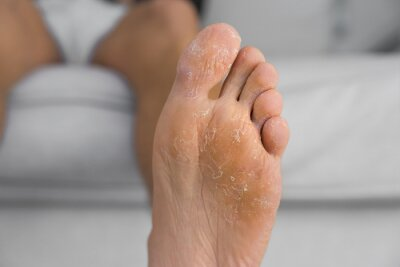 Obraz Close up of peeling and cracked foot. Fungal infection or athlete's foot, dry skin, dermatitis, eczema, psoriasis, allergic reaction, sweaty feet or dehydration