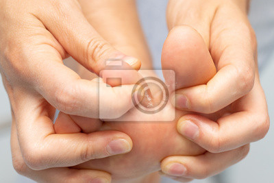 Obraz Closeup of barefoot of girl suffering with athlete's foot due to fungal infection