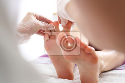 Obraz Dermatolog. Lekarz leczy Stopy pacjentki