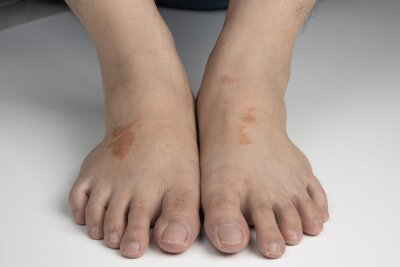 Obraz feet infected with ringworm, athlete's foot or tinea pedis fungal infection. on white background.