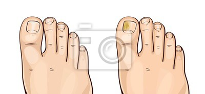 Obraz Foot fungal infections. Athlete's foot is a fungal infection