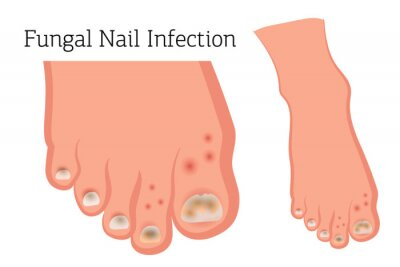 Obraz Fungal diseases of the nails and skin of the feet. Athlete's foot, onychomycosis, candidiasis. Vector illustration of medical posters and stands