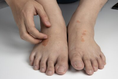 Obraz hand scratching foot infected by ringworm, athlete's foot or tinea pedis fungal infection. on white background.