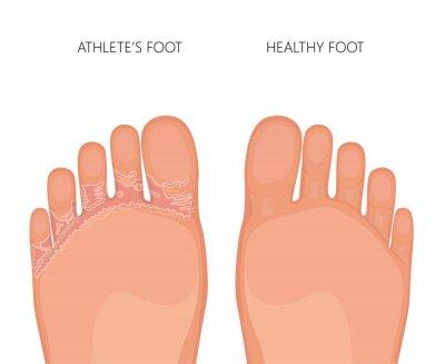 Obraz Ilustrace atletické nohy nebo tinea pedis (chodidla nohou) s poškozenou kůží mezi prsty a pod prsty. Pro lékařské publikace