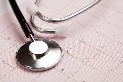 Obraz Lékařskou zprávu a cardiogram