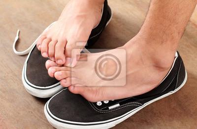 Obraz Mykóza nohou