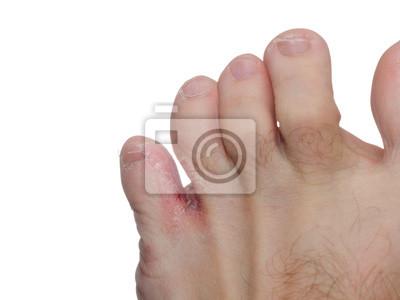 Obraz Mykóza nohou (tinea pedis)