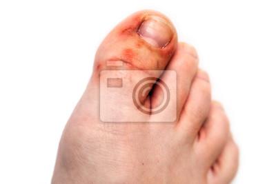 Obraz Sick female foot