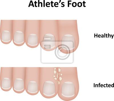 Obraz Sportovce Foot Diagram