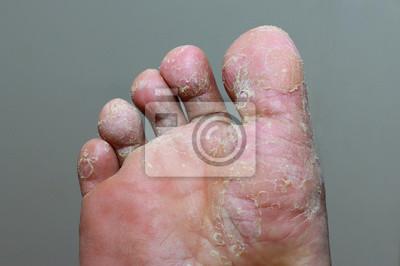 Obraz Sportovní noha - tinea pedis, houbová infekce