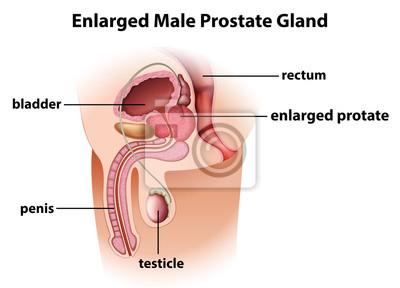 biopsie prostata